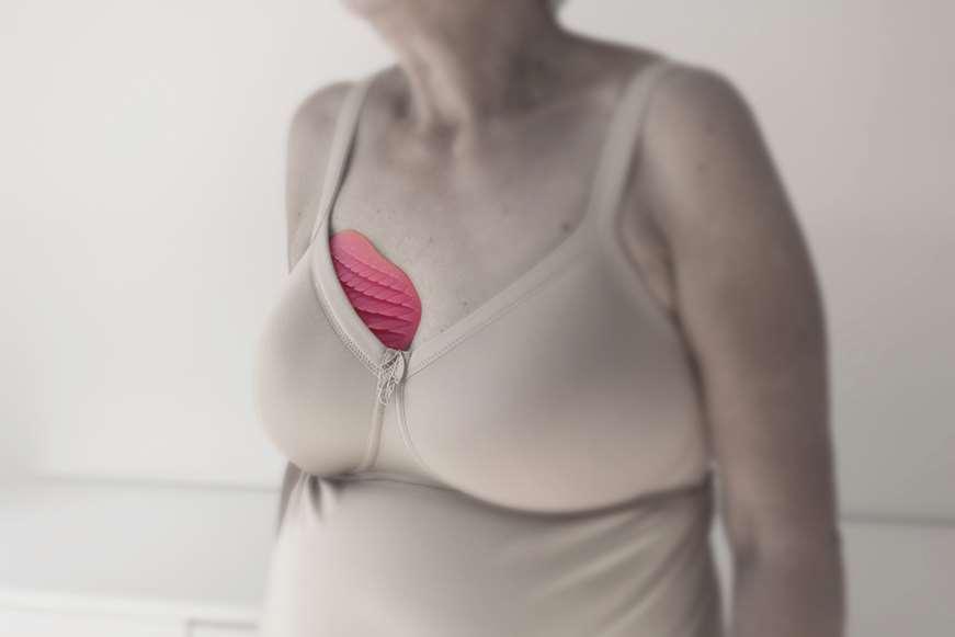 simpla proteza piersi druk 3d Małgorzata Załuska nagroda główna konkurs Łódź 2018 festiwal designu